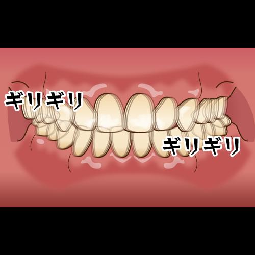 歯 を 食いしばる 意味